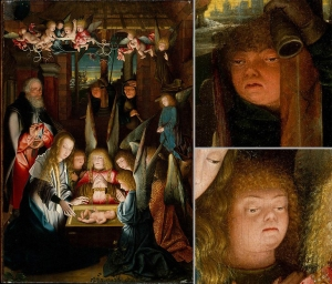 Early depictions of people with Down syndrome in The Adoration of the Christ Child by Jan Joest of Kalkar.